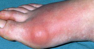 Kisah Benar ! Sakit Gout Umpama Ditusuk Jarum